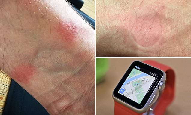 Apple Watch burned the wrist