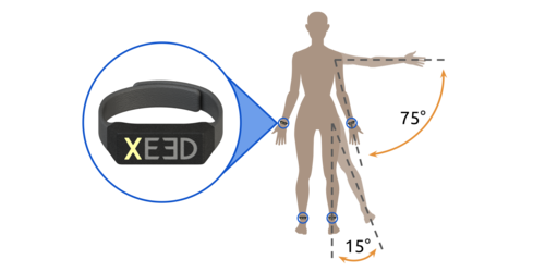 XEED -A Parkinson's Wearable By UPenn's Students