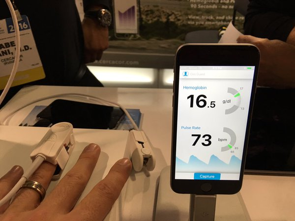 Athletes can know their hemoglobin instantly with Ember